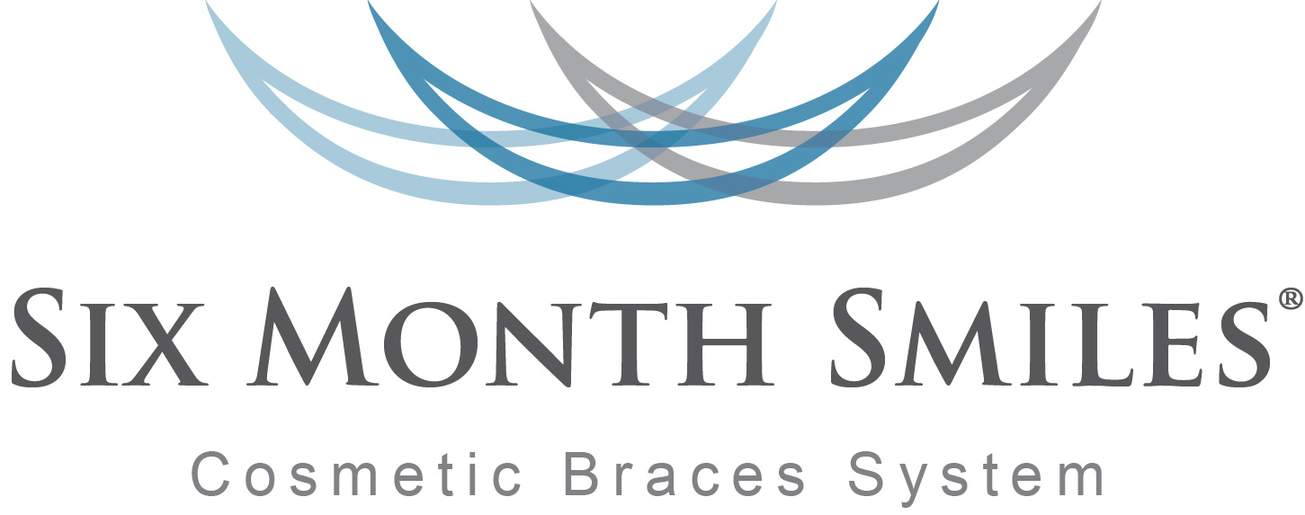 six month smiles - cosmetic brace system